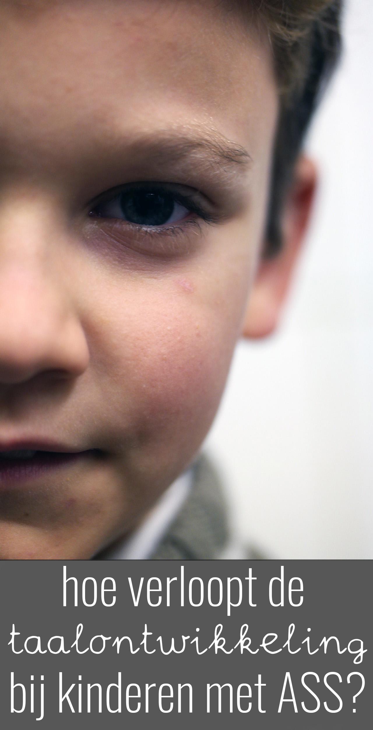 De taalontwikkeling bij kinderen met ASS verloopt anders dan bij kinderen met een 'normale' ontwikkeling. Ze vallen op in hun spreken en woordenschat.